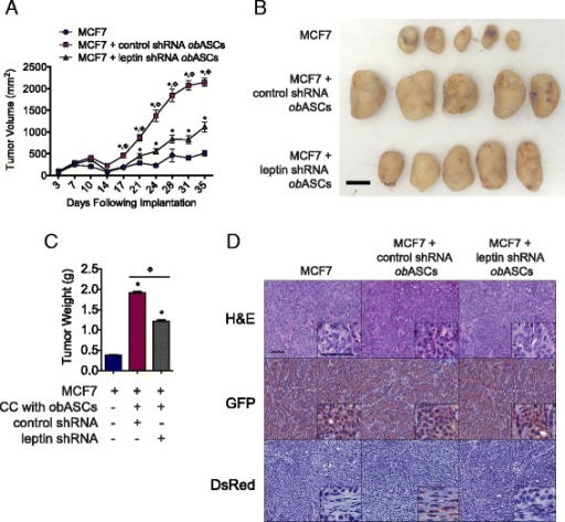 Leptin inhibition in adipose stromal/stem cells isolated from obese women (obASCs) reduces tumor volume. MCF7 cells were prepared alone or co-injected with control short hairpin shRNA (control shRNA) obASCs or leptin shRNA obASCs (1:1 ratio) into the mammary fat pad of SCID/beige mice (n = 5 mice/group). a Tumor volume was assessed every 3–4 days. b Representative tumors from each mouse (n = 5/group). Scale bar represents 1 cm. c Tumor weight on day 36. d Representative images of H&E, green fluorescent protein (GFP) staining, and dsRed staining of tumor sections visualized at × 10 and × 40 magnification (inset). Scale bar represents 50 μm. Bar represents ± standard error of the mean. *P <0.001 relative to MCF7 xenografts; ΦP <0.001 for comparison between MCF7 plus control shRNA obASC xenografts and MCF7 plus leptin shRNA obASC xenografts