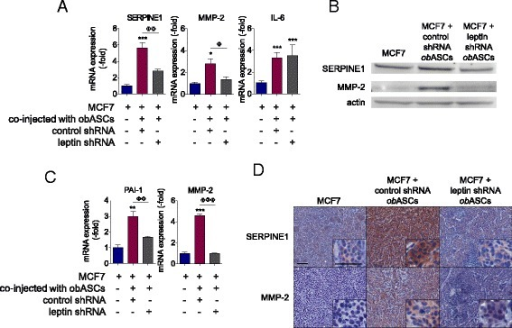 Adipose stromal/stem cells isolated from obese women (obASC)-derived leptin induces SERPINE1 and matrix metalloproteinase-2 (MMP2) expression in MCF7 xenografts. MCF7 cells were prepared alone or co-injected with control short hairpin RNA (control shRNA) obASCs or leptin shRNA obASCs (1:1 ratio) into the mammary fat pad of SCID/beige mice (n = 5 mice/group). After 36 days, tumors were harvested for analysis. a Total cellular RNA was isolated from tumors and analyzed for the expression of SERPINE1, MMP-2, and IL-6. b Western blot analysis of tumor lysate. A total of 20 μg of protein was separated by SDS-PAGE under reducing conditions, blotted, and probed with indicated antibodies. Blots were stripped and probed with actin antibody for normalization. c Densitometry analysis of SERPINE1 and MMP2 bands, normalized to actin. d Representative images of SERPINE1 staining and MMP-2 staining of tumor sections visualized at × 10 and × 40 magnification (inset). Scale bar represents 50 μm. Bar represents ± SD. *P <0.05, **P <0.01, ***P <0.0001 relative to MCF7 xenografts; ΦP <0.05, ΦΦP <0.01, ΦΦΦP <0.0001 between MCF7 plus control shRNA obASC xenografts and MCF7 plus leptin shRNA obASC xenografts