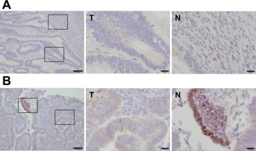 MSH6 proteins are downregulated in ovarian and endometrial cancer. (A and B) Immunohistochemical staining of tumor (T) and surrounding normal (N) tissue with an MSH6 antibody in ovarian (A) and endometrial cancer (B). MSH6 protein accumulated in the nuclei of normal tissue (left image), but not in tumor tissue (middle image). Right-hand images show a high-power magnification of left-hand images. Scale bars, 100 μm for left-hand image, and 20 μm for middle and right-hand image. N, normal tissue; T, tumor tissue.