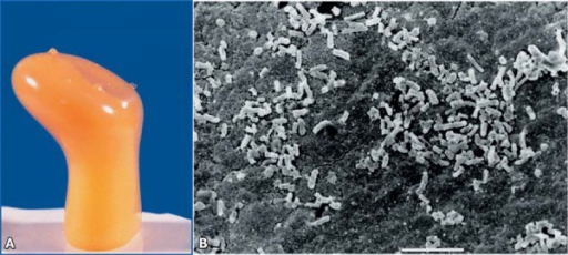 15-minute immersion in boiling water - Colonies/biofilms of Mutans streptococci after microbial culture (A) and scanning electron microscopy micrograph (B)