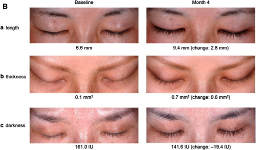 Examples of subjects who responded to bimatoprost treatment with an increase in a upper eyelash length, b thickness, and c darkness, including baseline and month 4, as well as a change from baseline values (measurements are rounded to the nearest whole number). The individual changes in these subjects were comparable with the mean changes observed in the bimatoprost group in a study 1 and b study 2. IU intensity units