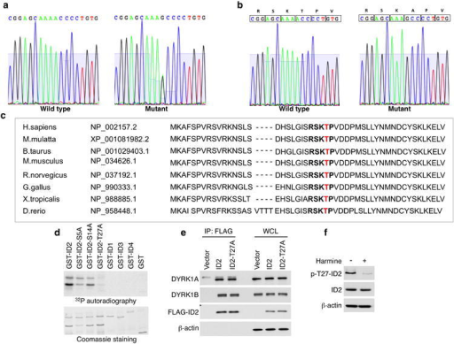 T27A missense mutation in ID2 in human cancer cells and ID2-T27 phosphorylation by DYRK1 kinasesa, Sequence analysis of genomic DNA from the neuroblastoma cell line IMR32 shows the wild type sequence (left panel). Sequencing of DNA from the colon cancer cell line HRT-18 shows a heterozygous mutation resulting in the change of codon-27 from ACC (threonine) to GCC (alanine) (right panel). b, Both wild type and mutant ID2 are expressed in HRT-18 colon cancer cells. Sequence analysis of representative clones (out of 20 clones) derived from HRT-18 cDNA demonstrates expression of wild type (left panel) and mutant (right panel) alleles. c, Amino acid sequence flanking ID2-T27 (marked in red), including the DYRK1 consensus motif (bold), is evolutionarily conserved. d, In vitro kinase assay using bacterially expressed GST-ID proteins and recombinant DYRK1A. e, U87 cells transfected with FLAG-ID2, FLAG-ID2-T27A or the empty vector were immunoprecipitated with FLAG antibody. Co-precipitated proteins were analyzed by western blot using DYRK1A, DYRK1B and FLAG antibodies. β-actin was used as control for loading. WCL, whole cell lysate. f, U87 stably transfected with FLAG-ID2 were treated with harmine (10 μM) or vehicle for 24 h and analyzed by western blot using the indicated antibodies.