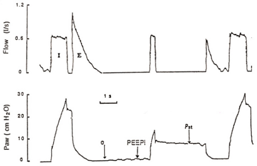 Inspiratory occlusion technique as described by Levy et				al [8]. The patient is on controlled ventilation				with a constant flow. Between two measurements, the lung volume is standardized				by maintaining the ventilatory parameters constant. The intrinsic PEEP (PEEPi)				is determined before each inflation followed by an end-inspiratory occlusion.				The plateau pressure (Pst) is obtained a few seconds after the occlusion. From				Levy et al [8].
