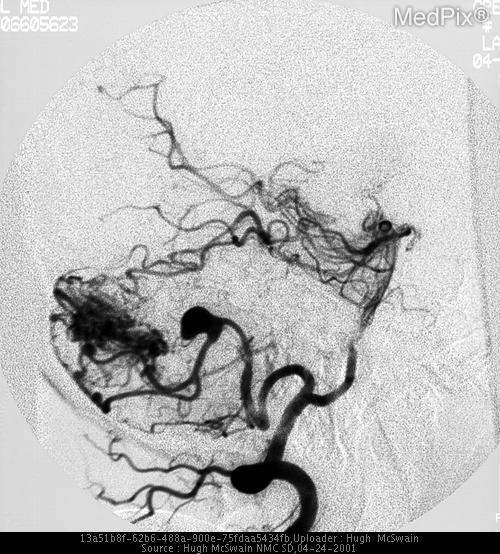 Angiography demonstrates opacification of a tangle of vessels in the right cerebellum with an early draining vein and a right PICA aneurysm consistent with a cerebellar AVM.