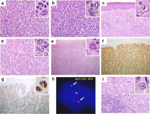 "Anaplastic large-cell lymphomas (ALCLs) with IRF4 translocations. (a) Primary cutaneous ALCL (C-ALCL), 48 year-old female (case 3). Medium to large tumor cells with admixed histiocytes (H&E, x 40; inset, x 100). (b) Lymph node involvement, same patient, 10 years later. Confluent sheets of large ""hallmark"" cells (H&E, x 40; inset, x 100). (c) C-ALCL, 67 year-old male (case 4; H&E, x 20; inset, x 100). (d) Lymph node involvement, same patient, 7 mos later (H&E, x 40; inset, x 100). Both biopsies show sheets of ""hallmark"" cells. (e) C-ALCL, 89 year-old female (case 5), showing positivity for (f) CD30 and (g) MUM1/IRF4 (x 10; insets, x 100). (h) Breakapart fluorescence in situ hybridization (BAP-FISH) shows separation of red and green signals flanking the IRF4 gene locus (arrows). (i) Systemic ALK-negative ALCL, cervical lymph node, 79 year-old male (case 12). Large ""hallmark"" cells surround a residual reactive follicle (lower left; H&E, x 40; inset, x 100)."