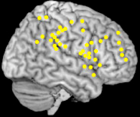 Activation sites associated with target related salience. Meta-analysis (performed in MRIcro–www.sph.sc.edu/comd/rorden/mricro) of brain activation sites associated with target detection during the oddball paradigm in healthy control subjects. Only right hemisphere frontal and parietal regions are shown.