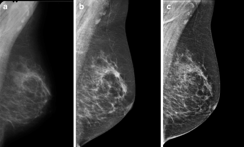 Pseudolesion seen with high contrast resolution in FFDM. a Prior screening mammogram (SFM), b screening mammogram followed by referral (FFDM), c mammogram in subsequent clinical assessment (FFDM)