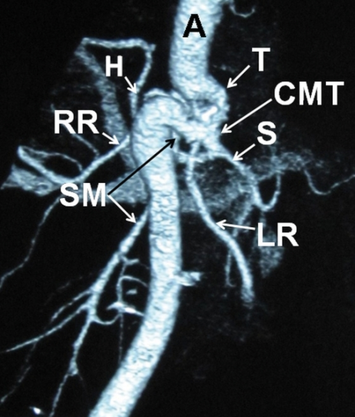 3D computed tomography (CT) angiography. A  =  aorta; T  =  tortuousity; H  =  common hepatic artery; S  =  splenic artery; CMT  =  common celiacomesenteric trunk; SM  =  superior mesenteric artery; RR  =  right renal artery; LR  =  left renal artery.