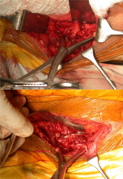 Symphysis displacement reduction maneuver; placement of large pointed pelvic reduction clamps on each side of the symphysis and superior placement of plate in this case to maintain reduction.