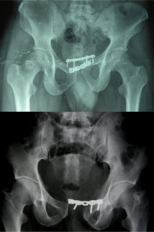 Implant failure in the two other patients showing plate pull out