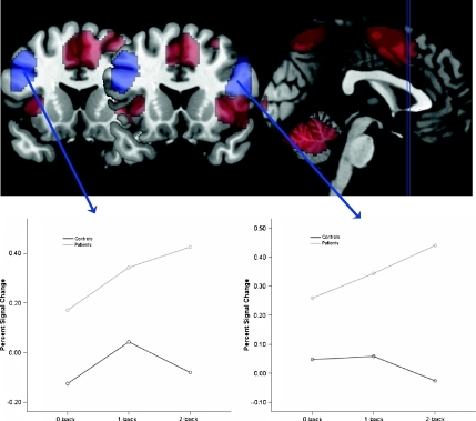 Group-by-load interactions in BOLD response. The upper part of the figure depicts in red the areas that show a significant main effect of load and in blue the two prefrontal areas that show a significant group-by-load interaction. The selection of the two coronal slices corresponds to the Talairach y coordinates of the peak voxel for the right (y  = 18) and left (y  = 17) PFC clusters, respectively. The lower parts of the figure depict the nature of the interaction effects separately for left and right PFC