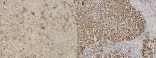 Immunohistochemical features of the tumor. (A)Immunohistochemical study demonstrates that Reed-Sternberg cells are positive for CD30 (Envision × 100). (B) Immunohistochemical study shows that diffuse large B-cell lymphoma cells is positive for CD20 (Envision × 100).