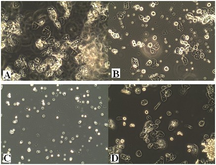 The main stages of the reproductive cycle in the control rats. Swab smears (unstained) shown with the original microscope magnification of 100×. A:Estrus stage: large cornified cells in clumps. B: Metestrus stage: large numbers of leucocytes with smaller numbers of non-nucleated epithelial cells (note characteristic clumping together of two cell types at the center-right). C: Diestrus stage: predominantly leucocytes with a small number of epithelial and cornified cells. D: Proestrus stage:epithelial cells are mostly rounded but some cells shows early stages of cornification of approaching estrus.