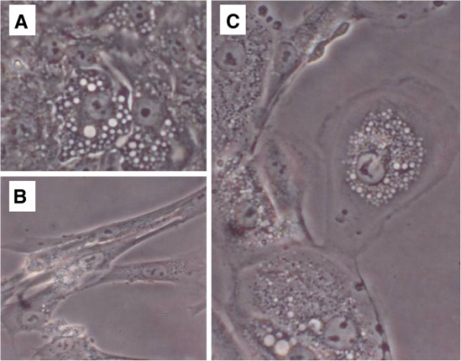 Appearance of early RPTEC culture and of WI-38 cells during bioactive agent release assay. [A] Vacuolated RPTEC cells, 24 hr culture, 400X. [B] Non-infected WI-38 cells demonstrating expected fibroblast shapes, 400X. [C] WI-38 cells 12 hrs post-exposure to spent BGM from a 24 hr RPTEC culture, 400X.