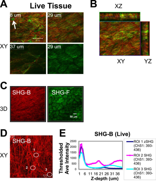 "Comparison of reflected (SHG-B) and transmitted SHG-F signals reporting surface collagen layers. At Ex 860 nm, SHG-B (ChS: 393–436 nm; red) and SHG-F (ChD, green) images were collected in a Z-series beginning at the lateral margin of the gland. A-B. The patterns of SHG-B and SHG-F are not identical since single color fibers appear red (SHG-B) or green (SHG-F) as shown in XY planes (A) and in orthogonal images (XY; XZ; YZ) (B). C. 3D images were prepared using Metamorph Offline Ver. 7.7.7.1 (""Open in 4D viewer""). The surface shown rested adjacent to the coverslip surface. The SHG-F view bears the pattern of the outlines of fat cells, whereas the view of fibers provided by SHG-B is not affected. D-E. A single XY slice reveals details of the fiber orientation and was taken at a depth of 4 μm. The average intensities of SHG-B signals for three different ROIs were calculated and plotted against Z-depth on the X-axis. The thickness of the fibrillar layer is on the order of 6 μm, although SHG is detected variably deeper into the tissue. Scale bars = 50 μm."