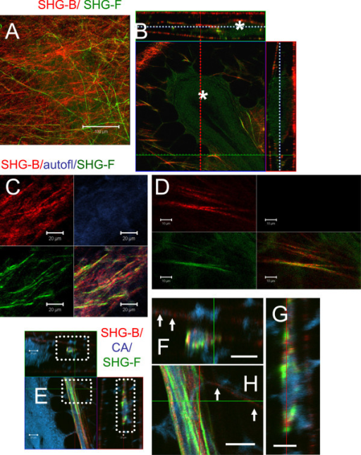 SHG-B and SHG-F identify different collagen fibers. A Z-stack of images 78 μm deep was collected of a TEB from a Carmine Alum whole mount. A. A two-color image of SHG-B and SHG-F signals illustrates that even in one XY plane, two types of collagen fibers are identified. B. An orthogonal view of the same region showing SHG-B and SHG-F signals at various depths. Three layers of fibers are seen with the TEB which is sandwiched between two of the layers, asterisk. Dashed lines indicate planes of associated images; red for YZ, green for XZ, and blue for XY. C and D. SHG-B (red) / 500–550 nm (autofluorescence, blue)/ SHG-F (green) images reveal that SHG-B and SHG-F signals are not identical despite their arrangement in parallel arrays. In D, Individual fibers can be seen to have both SHG-B and SHG-F signals. Typically the signal from SHG-B (red) has more texture, whereas the signal from SHG-F (green) is smoother and finer in appearance. A-B, E-G. Small vessels contain associated fibers with both SHG-F and SHG-B showing strong signal intensity compared with with TEB-associated fibers that are indicated by arrows. F-G are insets from E indicated in E by dashed boxes. E scale bar = 50 μm; C, F-H, scale bar = 20 μm; D, scale bar = 10 μm.