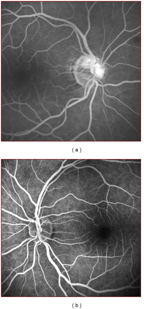 (a) FA images of a patient showing optic disc hyperfluorescence and (b) a normal FA image of another patient.
