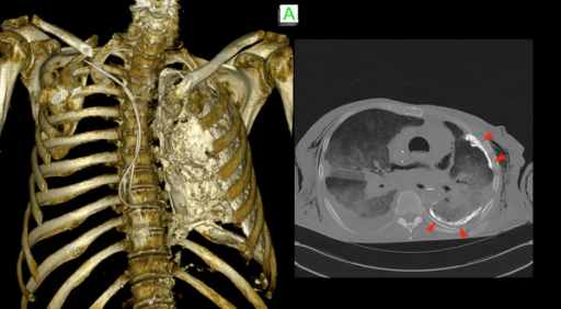 The CT imaging quality of the skeletal system was good. With the help of 3-D reconstruction a Pleuritis calcarea found in CT-thorax as well as the positions of pacemaker leads can be illustrated easily for teaching purposes.