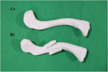 A real-size fractured clavicle model is 3D printed (Rt). Using the mirror imaging technique, the undamaged left side clavicle model is also printed to become a suitable replica of the fractured right side clavicle prior to injury (Lt)