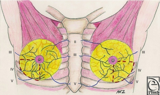 Anterior view of intercostal nerve innervation to the nipple. The red dashed lines demarcate the inferolateral breast quadrant to be avoided during surgical dissection so as to preserve nipple sensation.