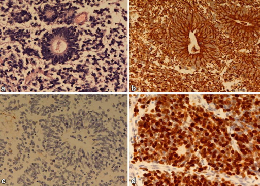 A PNET-like tumor with true rosettes is seen in the HE-stained section (a). The true rosettes are positive for vimentin (b) and negative for GFAP (c). The Ki-67 labelling index is about 90% (d).