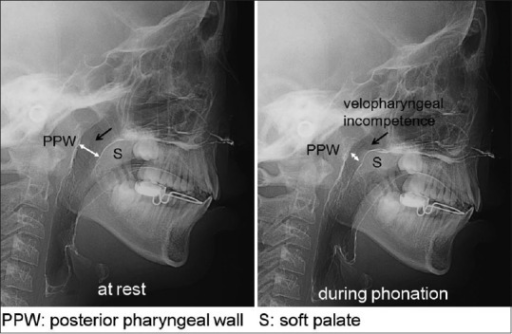 Examination of velopharyngeal function by cephalogram with contrast medium