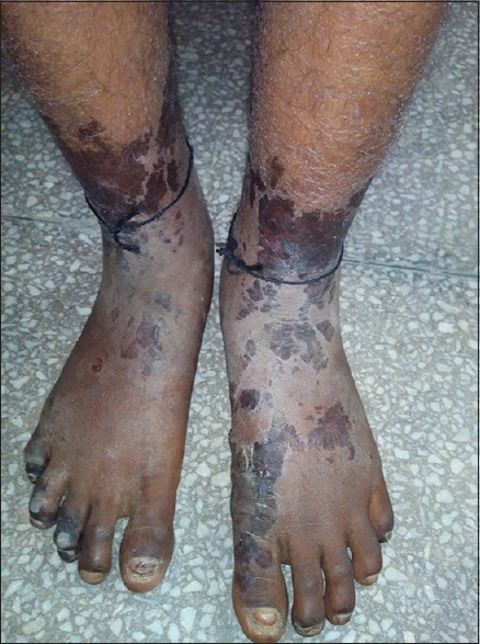 Image of both feet showing symmetrical peripheral gangrene