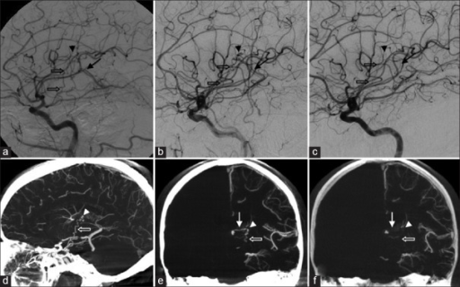 The arteriovenous malformation (AVM) nidus (arrowhead), seen on lateral digital subtraction angiography (a, b and c) and three-dimensional sagittal (d) and coronal (e and f) cone beam computed tomography reconstructions (left carotid injections), is fed by the left anterior choroidal artery (hollow arrow) and a thalamic perforator branch of the left posterior communicating artery (right vertebral injection, not shown), and drained by the left internal cerebral vein (solid arrow). (a) Hematoma obscures the nidus at presentation, (b, d and e) 3 months follow-up reveals the AVM, and (c and f) 7 months follow-up demonstrates complete spontaneous AVM obliteration
