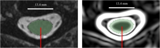 An axial slice of the MR image (left) and the gradient image (right) of the cervical spinal cord.πThe light green shading illustrates the manual segmentation. The red radial line rotating about the spinal cord centerline axis was used for extracting the MRI signal.