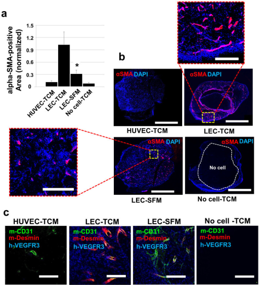 MB231-LEC recruit pericytes in vivo High-concentrate ma | Open-i