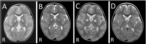 Brain MRI of the patients. (A) Brain MRI of patient II-2 at 14 months revealed bilateral signal abnormalities in the globi pallidi and right caudate nucleus. (B) Brain MRI of patient II-4 at 14 months showed bilateral signal abnormalities in the globi pallidi. (C) Brain MRI of patient II-4 at 18 months revealed progression of the pathological lesions, with atrophy of the cortex and enlargement of the ventricles. (D) The brain MRI scan of patient II-4 at 24 months shows improvement in signal abnormalities in the basal ganglia when compared to scans at 14 (B) and 18 (C) months.