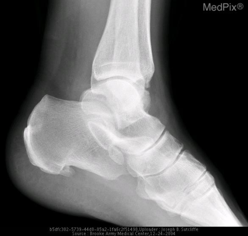 Plain radiograph of the left ankle
