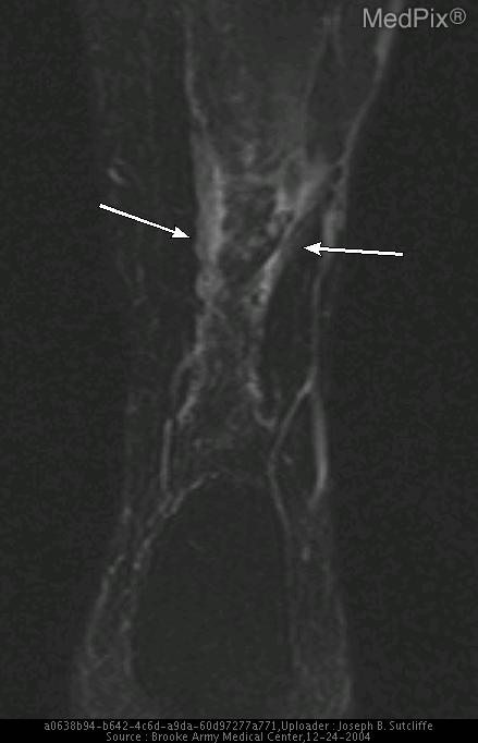 T2W fat suppressed coronal image demonstrates increased signal in the subcutaneous tissues overlying the Achilles tendon