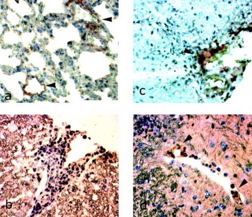 Immunohistochemical detection of chlamydial antigens in the spinal cords of mice with EAE. (a) Presence of chlamydial antigens in lung tissue from Balb/c mice, infected intranasally with C. pneumoniae and stained with Mab 807. (b) Representative areas of perivascular infiltration/inflammation in C. trachomatis-infected mice with EAE, showing no staining with Mab 807. (c and d) Representative areas of perivascular lymphocytic inflammation of C. pneumoniae-infected mice with EAE, indicating staining with Mab 807 (arrows).