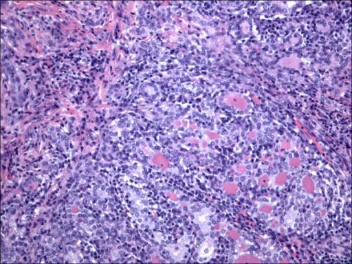 Papillary carcinoma in the setting of Hashimoto thyroiditis H&E.