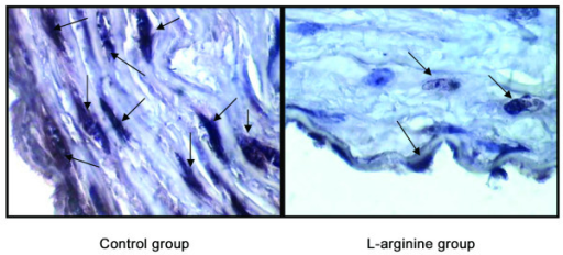 TUNEL performed in rabbit's aorta. Aorta section from rabbit that apoptosis of arterial cells is a prominent feature of atherosclerotic lesions (control group), but less apoptotic cells were observed in the aorta of L-arginine group.