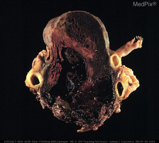 Section through specimen showing extensive hemorrhagic necrosis of the pituitary macroadendoma tumor.