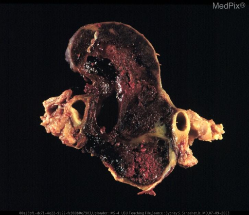 Section through specimen showing extensive hemorrhagic necrosis of the pituitary macroadenoma.