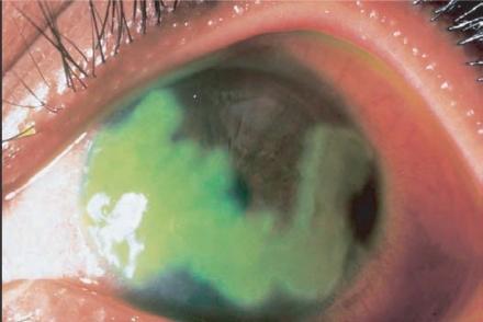 Herpes simplex corneal ulcers, herpetic keratitis 2