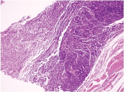 Coexistence of nasopharyngeal carcinoma (left) and MALT-type lymphoma (right) (HE x40).