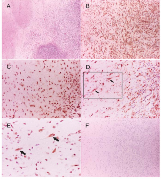 Microglia are likely to express phosphorylated p38 in patients with CNS TB. Brain biopsies from five patients with CNS TB were stained. (A) H&E stained section of cerebellar cortex shows typical TB necrotizing granulomas (original magnification 10×). (B) Iba1 (a microglial/macrophage marker) staining confirms a florid microglial and macrophage infiltrate in the TB granuloma (original magnification 20×). (C) p38 immunoreactivity is almost exclusively expressed in the nucleus of microglial cells (original magnification 40×). (D) Iba-1 staining in microglia denoted by arrows with rectangle denoting area enlarged for (E) (original magnification 20×) (E) corresponding p38 positive microglia with characteristic nuclear shape enlarged from rectangle in (D) (original magnification 40×). For immunostaining (B - E) areas of immunoreactivity appear as brown against the blue counterstain. (F) Omission of the primary antibody in CNS TB biopsy demonstrates no immunoreactivity (original magnification 20×).