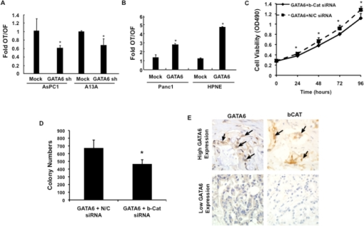 GATA6 Overexpression Correlates with Canonical Wnt Signaling.(A) Wnt signaling activity in AsPC1-GATA6sh and A13A-GATA6sh cells based on TOPFLASH assay. Luciferase activity is represented as the ratio of OT to OF levels in cells with GATA6 knockdown relative to that of mock-transfected cells. (B) Wnt signaling activity in Panc1-GATA6 and HPNE-GATA6 cells determined by TOPFLASH assay. Luciferase activity is represented as the ratio of OT to OF levels in GATA6 transfected cells relative to that of mock-transfected cells. (C and D) Panc1-GATA6 cells were transiently transfected with ß-catenin or mock shRNA and (C) cell proliferation or (D) colony formation determined. All experimental data shown represents the summary three independent experiments. *, p<0.05; **, p<0.01. (E) Immunolabeling patterns of GATA6 and ß-catenin protein in two representative PDAC tissues. Arrows indicate nuclear labeling of both GATA6 and ß-catenin in serial sections of the same cancer tissue. By contrast, the PDAC sample with low GATA6 expression also shows no expression of ß-catenin.