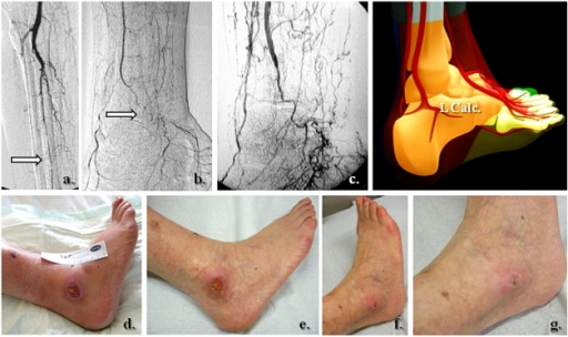 Lateral calcaneal artery and peroneal main flow-related   Open-i
