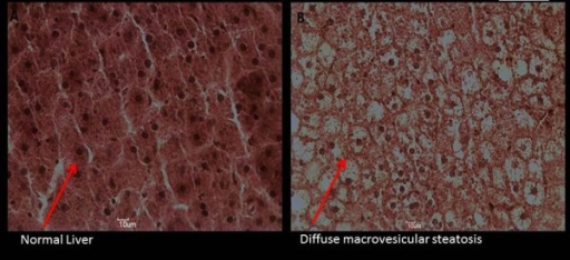 Liver HE histology of one rat at the end of the experiment as a representative example. A: Control Group; B: Fructose Group.