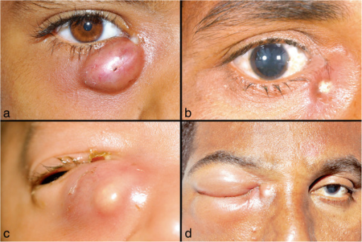 Clinical spectrum of lacrimal abscess. External photograph showing a well-localized right lacrimal abscess with discharge at the medial canthus (a). Clinical photograph depicting the pus point of the abscess (b). A neonate with right lacrimal abscess (c). Lacrimal abscess with orbital cellulitis (d).