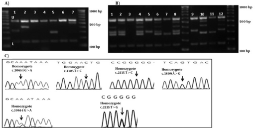 Chromatograms and gel Electrophoresis Images of the Mutation and the DNA Bands of Set 2 and 2A(A) Gel electrophoresis of Set 1, U: upper and L: lower controls are depicted for all lines. 3rd, 4th, and 6th wells show bands for the normal DNA. 100bp DNA ladder is depicted in right and left. Using Mix Set 2, Samples in 1st, 2nd, 5th, and 7th wells show the band for c.3061-1G > A, c.3305T > C, c.2335T > G, and c.3809A > G mutations, respectively. (B) Gel electrophoresis of the DNA bands of the hetero- and homozygote c.2335T > G, and c.3061-1G > A mutations. 1: the normal DNA with Set 2A. 2 and 3: heterozygotec.3061-1G > A mutation. 4 and 5: heterozygote c.2335T > G mutation; 6 and 7: homozygote c.3061-1G > A mutation. 8 and 9: homozygote c.2335T > G. 100bp DNA ladder is depicted in middle and left. (C) Chromatograms of main mutation detected in Set 1.