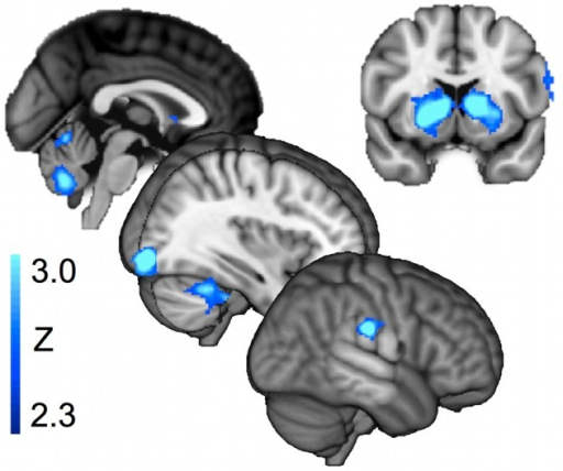 a review of amygdala activity as correlated with emotional information Amygdala activity at encoding correlated with long-term, free recall of emotional information proceedings of the national academy of sciences, usa, 93, 8016 - 8021  google scholar , crossref , medline.
