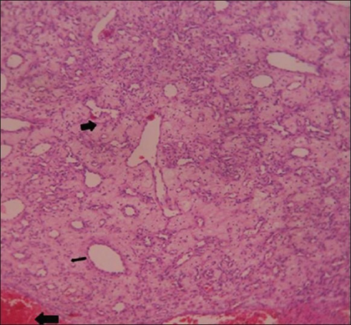 46-year-old female with intermittent episodes of nasal bleeding diagnosed with lobular capillary hemangioma. Hematoxylin and eosin stained tissue (×10) reveals lobules of small capillaries lined by flattened endothelium (thin black arrow) filled with blood, the surrounding stroma shows hemorrhage (thick black arrow) at places