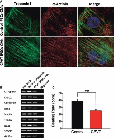 Characterization of CPVT iPSCs-CMs. (A) Micro-dissected contracting areas from the control and CPVT iPSCs-CMs were stained for typical myofilament proteins. The cardiomyocytes were co-labelled with anti-cardiac troponin I (green) and anti-sarcomeric α-actinin (red). (B) Representative PCR analysis of the cardiac gene troponin-T, and the calcium associated genes CASQ2, calreticulin, RyR2, junctin, triadin, NCX1, SERCA2 and the housekeeping gene GAPDH (n = 2). (C) The spontaneous beating rate of control iPSCs-CMs (n = 10) and CPVT iPSCs-CMs (n = 20). bpm: beats per minute.**P < 0.01. Scale bar: 10 μm.