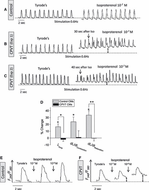 The effects of isoproterenol on the [Ca2+]i transients and contractions in control and CPVT iPSCs-CMs. (A) Representative contractions tracings of control iPSCs-CMs (43-day-old EB) stimulated at 0.6 Hz, in the absence (Tyrode's) and presence of isoproterenol. (B–C) Representative contractions tracings of CPVT iPSCs-CMs (33- and 38-day-old EBs, respectively) stimulated at 0.6 Hz, in the absence (Tyrode's) and the presence of isoproterenol. Note that after-contractions developed only in the CPVT cardiomyocytes in the presence of isoproterenol. (D) The effects of isoproterenol on contraction parameters of control iPSCs-CMs and CPVT iPSCs-CMs, *P < 0.05. (E–F) Representative [Ca2+]i transients of control iPSCs-CMs (40-day-old EB) and CPVT iPSCs-CMs (34-day-old EB), respectively, before and 5 min. after isoproterenol perfusion.